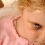 Texas Daycare Abuse and Child Abuse